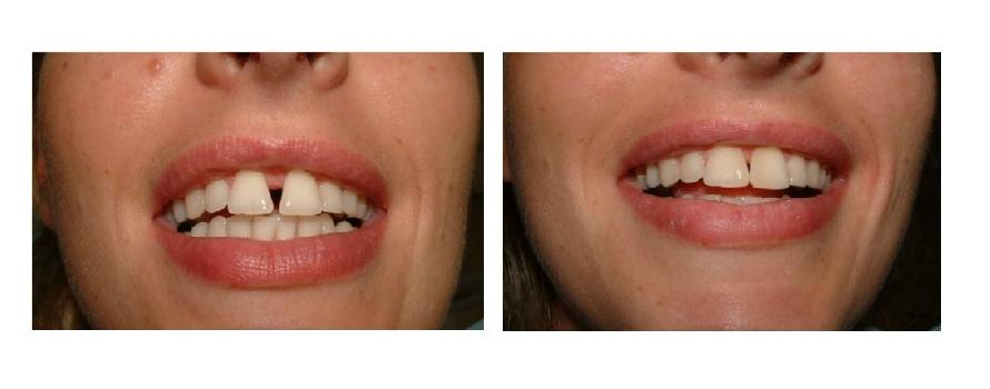 facette dentaire composite prix
