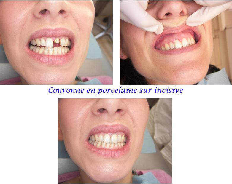 dent provisoire prix