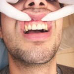 Remplacement-d'1-implant