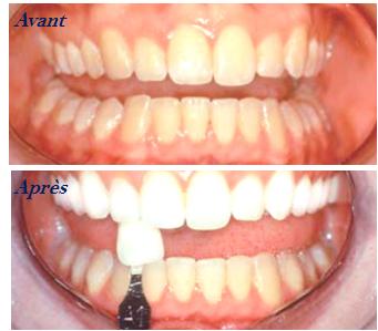 La M 233 Decine Anti 226 Ge Dentaire