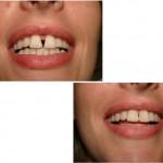 dents-du-bonheur